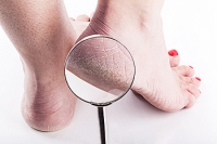 Cracked Heels Can Cause Difficulty in Walking